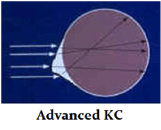 advanced-kc