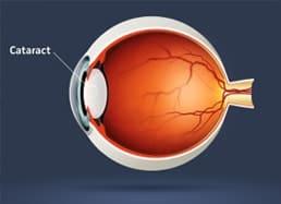 boston-cataract